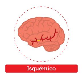 acv_cerebro isquémico